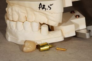 Killian Dental Ceramics, CDL Photo