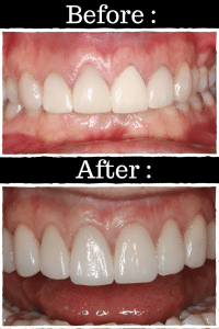 Behind the Scenes: Making Your Dental Restoration – What's in Your