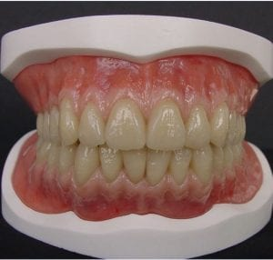 Ask A CDT: Denture Technology- Looking Back and Moving